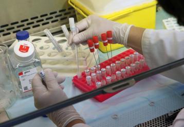 Δρ. Καραγιάννης: «Αλματώδης η αύξηση των κρουσμάτων, να εμβολιαστούν οι νέοι»