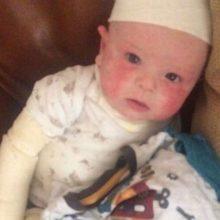«Νομίζαμε ότι το μωρό μας είχε απλώς ξηροδερμία αλλά ήταν κάτι χειρότερο»