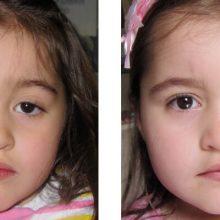 Συγγενής βλεφαρόπτωση: Η σπάνια πάθηση που αυξάνει τον κίνδυνο αμβλυωπίας στα παιδιά