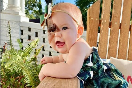 Το μωρό με τον Συγγενή Μελανοκυτταρικό Σπίλο αποδεικνύει ότι η ομορφιά δεν είναι θέμα εμφάνισης